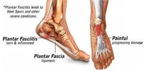 what causes plantar fasciitis
