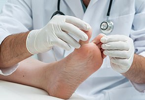 Ask the Doctor: Should I Have Bunion Surgery?