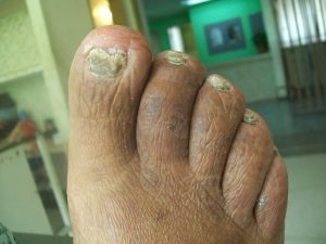 New Treatments for THICK, PAINFUL, FUNGAL Toenails.