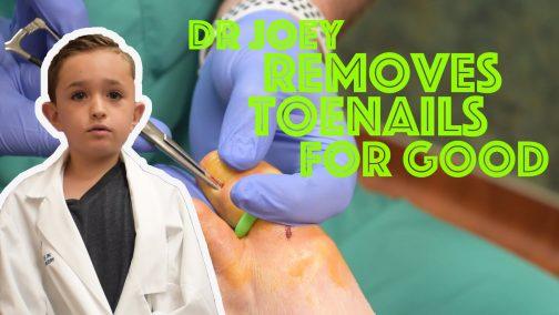 Remove Ingrown Toenails